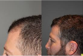 neograft recovery timeline atlanta hair transplant replacement neograft