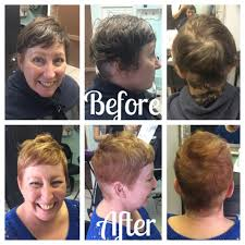 can you color hair after brain surgery fresh hair color after brain surgery a short do pinterest