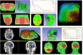 3d Medical Software Radiotherapy Software Toolkit For 3d Slicer Slicerrt The Perk Lab