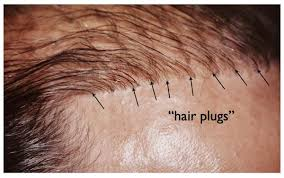 hair plugs for men are hair transplants worth it regrow your hair naturally