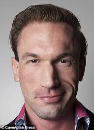 paddy mcguinness hair transplant embarrassing bodies dr christian jessen has wayne rooney hair