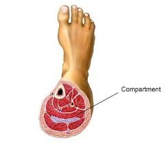What Is Dead Tissue Called Compartment Syndrome Nhs Choices