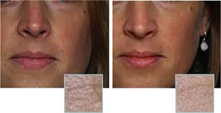 Light Therapy For Skin Red Light Therapy For Skin Tightening U2013 An Easy U0026 Safe Way To