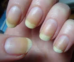 well that u0027s a bit unsightly the medipedi nail spa