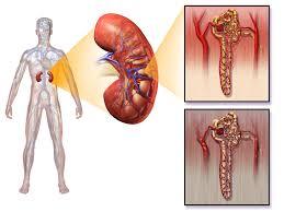Anatomy Of Human Body Pdf Diabetic Nephropathy India Pdf Ppt Case Reports Symptoms