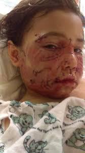 woodhaven lexus winnipeg manitoba dogs bite decatur al mount vernon wa a 7 year old boy was