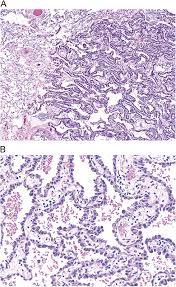 lepidic pattern meaning lepidic growth pattern in pulmonary adenocarcinoma humpath com