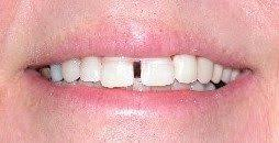 goody bands for teeth teeth effects cosmetic dentistry