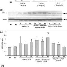 Serum Ats pcna and p27 expression in rat podocytes stimulated by anti