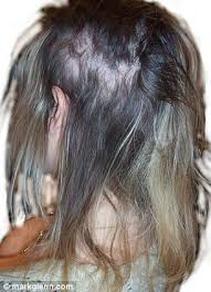hair extensions uk dangers of hair extensions blinding headaches to bleeding scalps