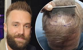 declan donnelly hair transplant dr griffiths hair transplant google
