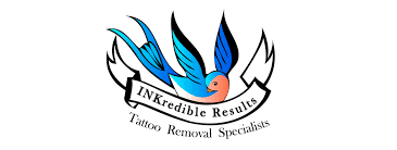 inkredible results tattoo removal logo design cheap website