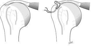 Palpate Supraspinatus Tendon Shoulder Arthritis Rotator Cuff Tears Causes Of Shoulder Pain