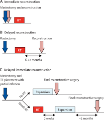 radiotherapy in the setting of breast reconstruction types