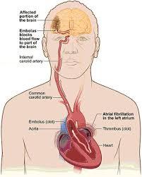 Right Side Human Anatomy 303 Best Anticoagulation Images On Pinterest Nursing Schools