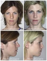 best hair for wide nose wide nasal bones before and after photo gallery nose surgery photos