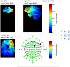 frontiers wearable functional near infrared spectroscopy fnirs