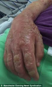 What Can Cause Blindness How Hogweed Sap Can Cause Third Degree Burns And Even Blindness