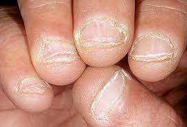 how to stop biting your nails with sauce 3 steps