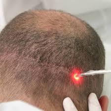 Tratamento capilar com laser, dicas e preços