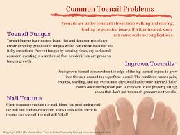 laser nail fungus treatment yourfootdoc com