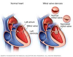 Anatomy Of Heart Valve Mitral Valve Stenosis Symptoms And Causes Mayo Clinic