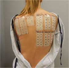 nickel allergy testing allergy patch testing florida dermatology