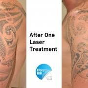 want the best laser tattoo removal check out before and after photos