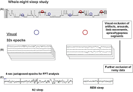 nrem sleep alpha and sigma activity in parkinson u0027s disease