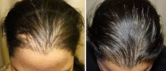 hair transplants in tj reviews hair transplant tijuana 1 rated center in mexico