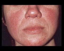 red public hair pics is rosacea causing your red irritated face american academy of