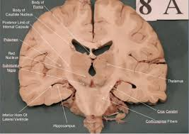 Gross Brain Anatomy Brain Sections Anatomy
