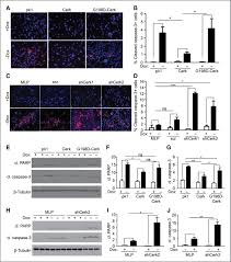 ceramide kinase promotes tumor cell survival and mammary tumor