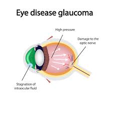 Lasik Long Island Cataract Surgery 4 Common Myths And Misconceptions About Glaucoma