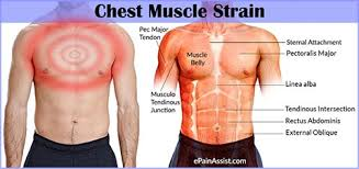 chest strain causes symptoms treatment recovery period