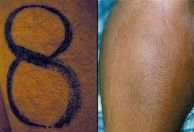 tattoo safety tattoo care and safe tattoo removal