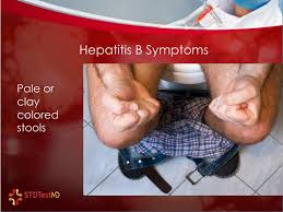 symptoms of hbv light colored stool ppt 10 common symptoms of hepatitis b infection powerpoint