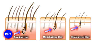 what gets rid of dht in body dht hormone hair loss how to stop dht hair loss