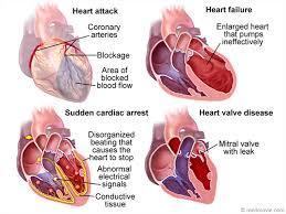Anatomy Of Heart Valve Aha Glossary Media Library