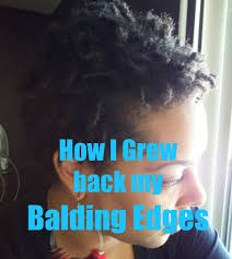 hair braids that hide receding edges how i grew back my balding edges