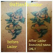 atlantic laser tattoo removal atlanticlaser instagram photos