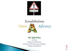 Night Blindness Caused By Vitamin A Deficiency Vitamin A By Sajib Reza