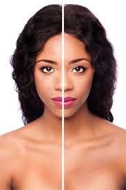 Light Spots On Face Demelan U003e Products U003e Demelan Even Skin Tone Cream