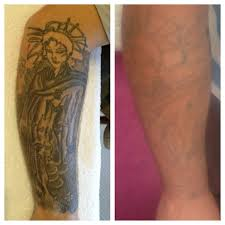 kingston ink laser tattoo removal clinic portsmouth