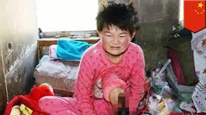 child leg utation 11 year needs surgery to survive