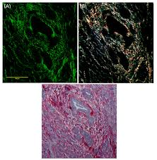 osa quantification of collagen organization in histopathology