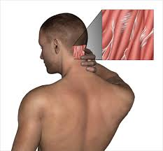 neck adhesions free non surgical treatment