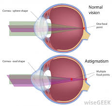Contacts For Color Blindness Correction What Are Corrective Lenses With Pictures