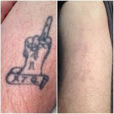 tattoo removal charlotte north carolina tattoo removals charlotte nc