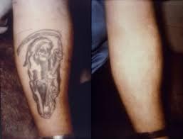 tattoo removal laser creams u0026 dermabrasion